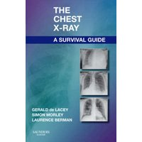 The Chest X-Ray by Gerald De Lacey Paperback Used cover